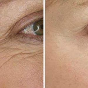 Before and After Wrinkle Treatment